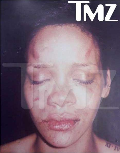 Rihanna's Face After Abuse - TMZ